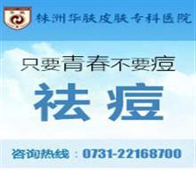 株洲白癜風皮膚病專科醫院